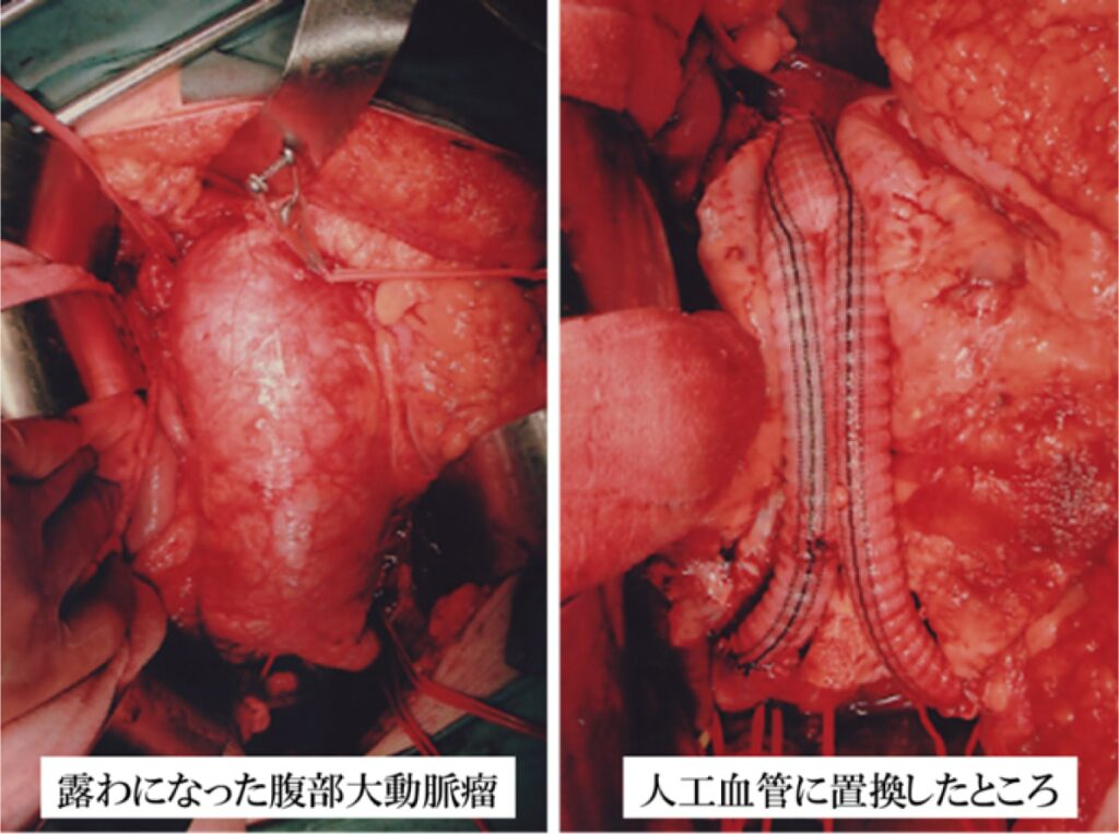 手術の方法は?(図3)