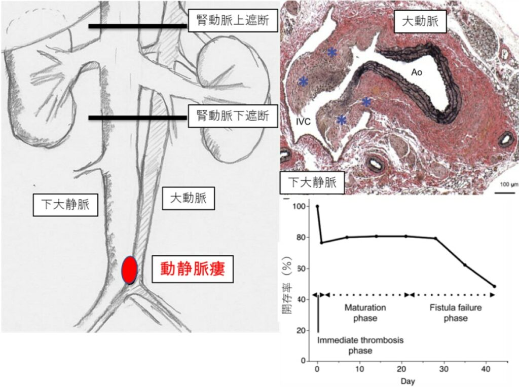 Arteriovenous fistula creation for dialysis: basic research for long-term patency