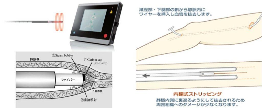 レーザー・高周波焼灼術とストリッピング手術(図3)