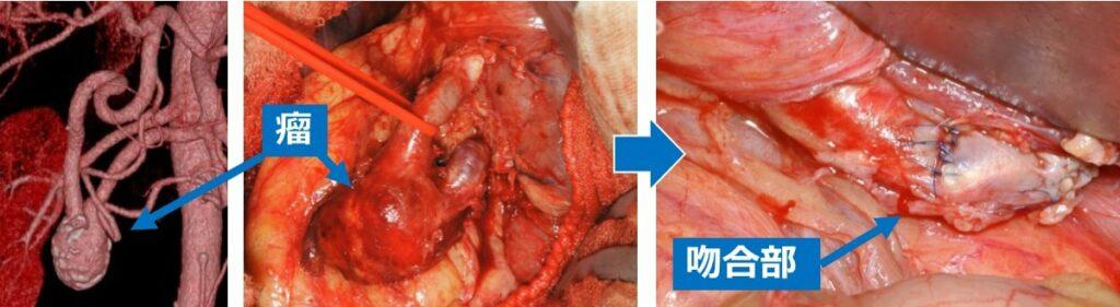 内臓動脈瘤の治療(図1)