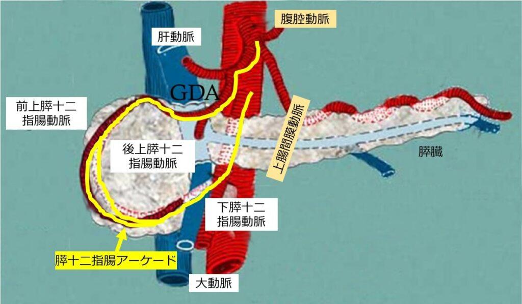 膵十二指腸動脈瘤の奇妙な原因(図3)